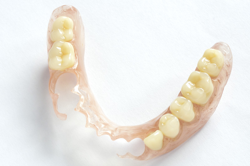 flexible partial denture