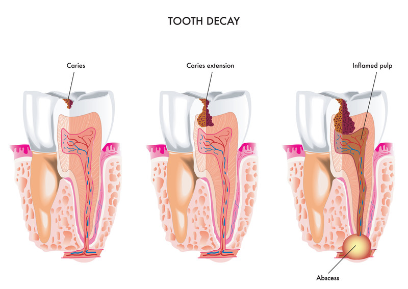 caries progression